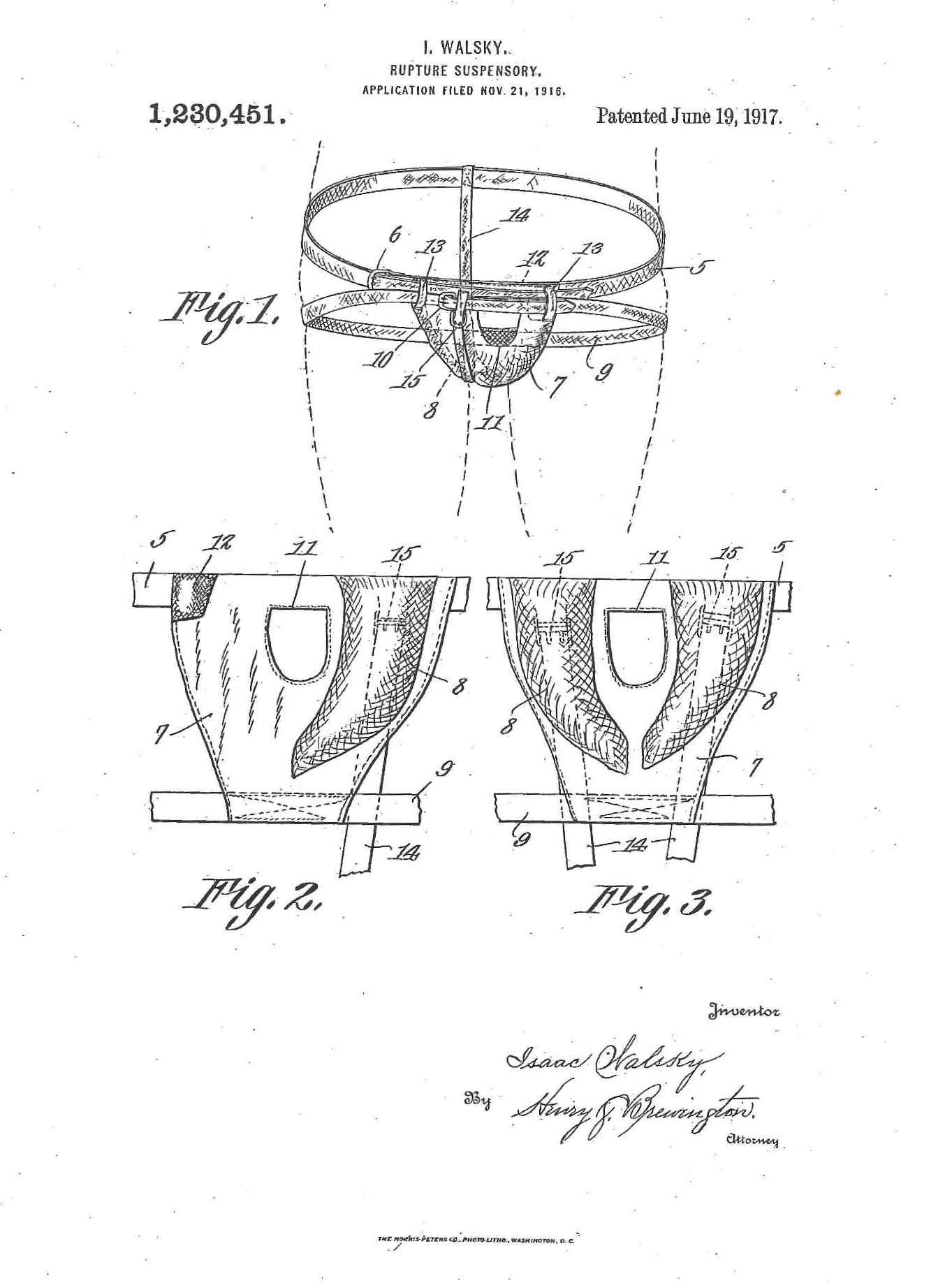 Walsky's improved rupture-suspensory, 1917. Via Google Patents